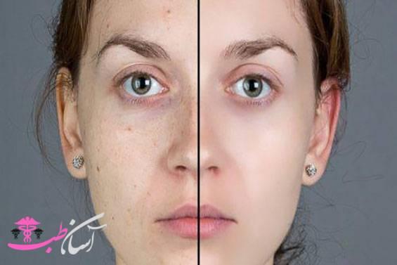 لیزر درمانی پوست