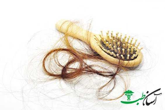 پیشگیری از ریزش مو