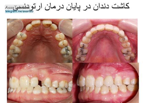 چند نمونه عکس دندان ارتودنسی شده