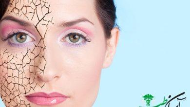 آلودگی هوا و پوست