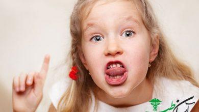 بد دهانی کودک