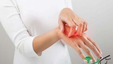 درمان خارش پوست بدن