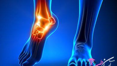 علت پا درد