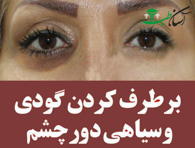 درمان و رفع گودی زیر چشم