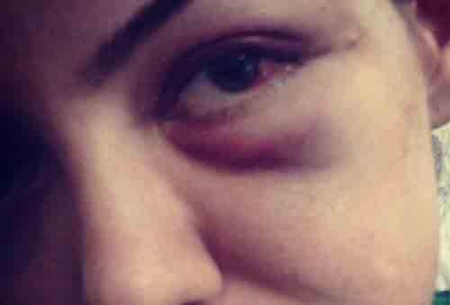 آسیب شناسی سندرم زنان کتک خورده