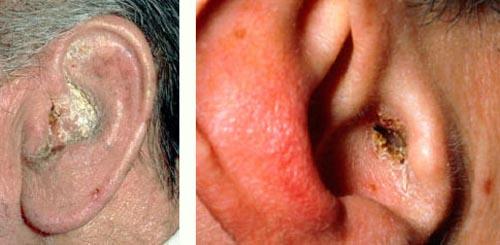 عفونت های استرپتوککی
