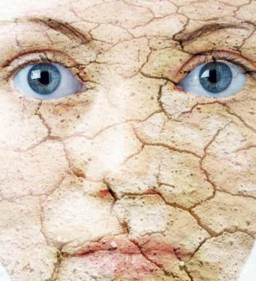 درمان پوست های خشک