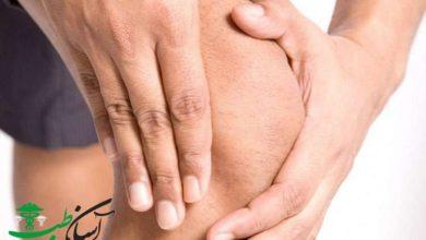 سندرم رایتر و آرتریت های راکتیو Reiter Syndrom