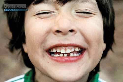 درمان لقی دندان