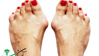اناتومی بند انگشتان پا