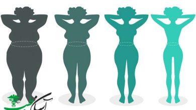گینویید یا چاقی زنان