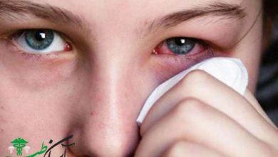 تراخم چشم از انواع بیماری های چشم