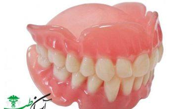 انواع دندانهای مصنوعی