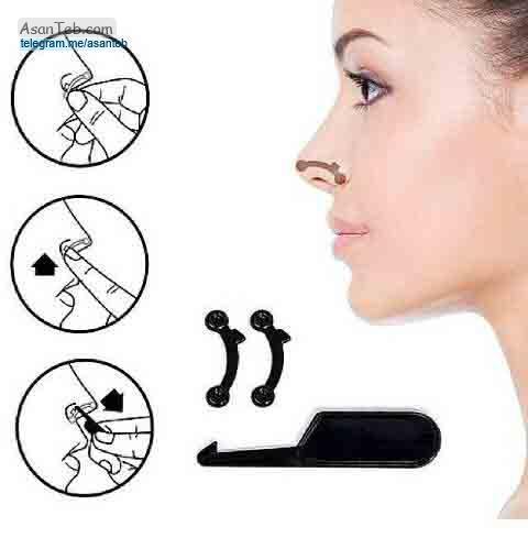 کوچک کردن بینی بدون جراحی با دستگاه nose secret