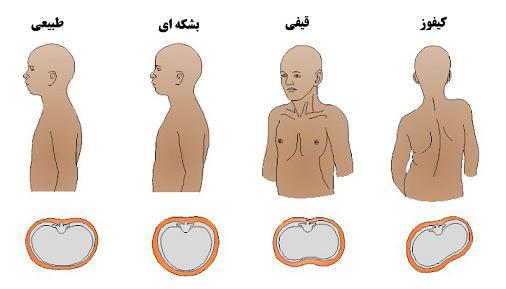 انواع بیماری قفسه سینه