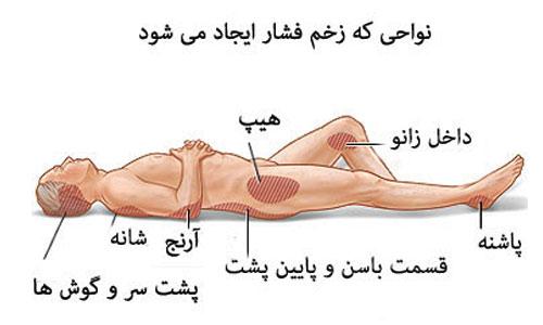 تعریف زخم فشاری چیست تعریف زخم بستر چیست