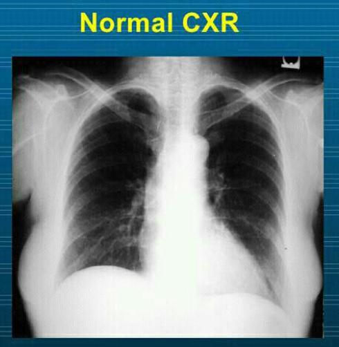 عکس رادیوگرافی قفسه سینه