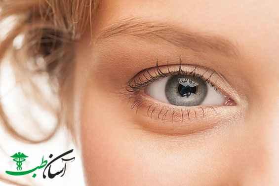 شادابی چشم
