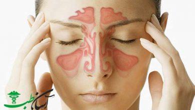 بیماری سینوزیت