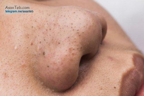 درمان جوش های سرسیاه روی بینی