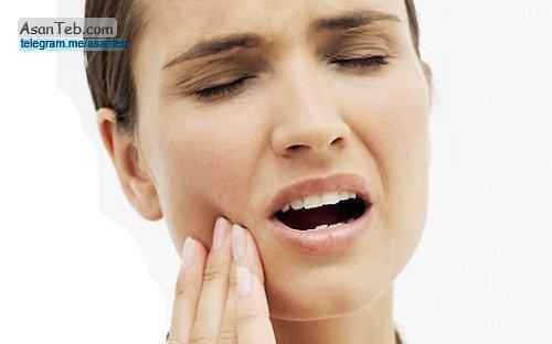 دنتا فورت پلاس مسکن فوری دندان درد
