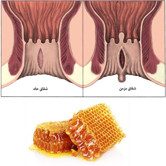 درمان شقاق مقعدی با عسل