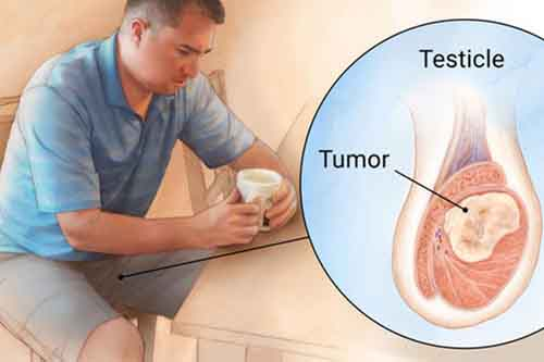 علت سرطان بیضه