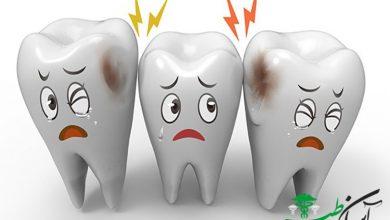 قرص دندان درد قوی