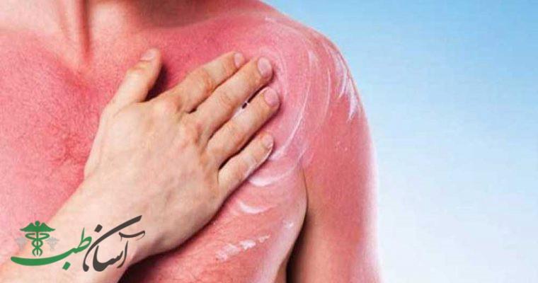 جلوگیری از گسترش بیماری پسوریازیس