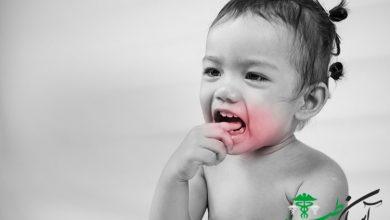 بی حسی دندان