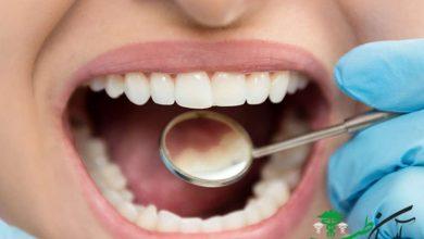 سیاهی دندان