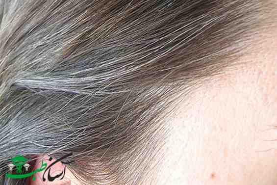 سفید شدن زود هنگام مو ها