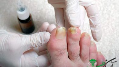زردی ناخن پا