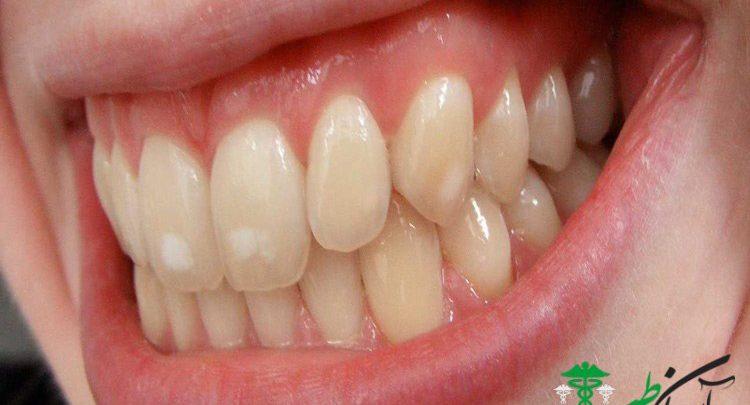 لکههای سفید روی دندان