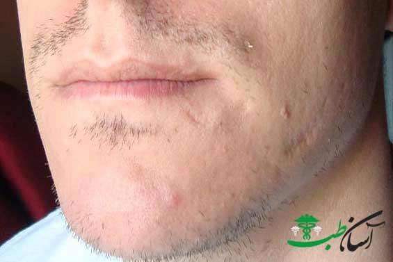 درمان کم پشتی ریش